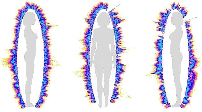 Hào quang của người phụ nữ bị trầm cảm (stress) nặng 6 tháng sau khi cô thực hiện ngồi thiền và các liệu pháp giảm stress đã có những cải thiện rõ ràng tuy vẫn còn chưa đầy đặn và có khe hở